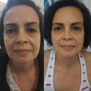 לאחר 10 טיפולי דיקור קוסמטי בלבד! איילת רסטרפו | מרכז טיליה לרפואה משלימה