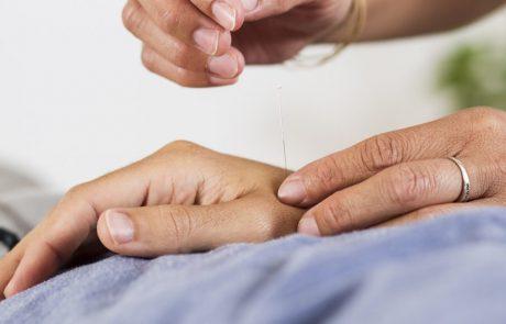 טיפול בגלי חום על ידי דיקור סיני
